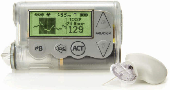 MiniMed 530G System with Elite Sensor by Medtronic